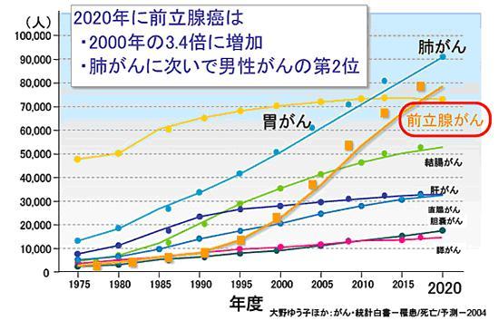図① 増加する前立腺がん患者数